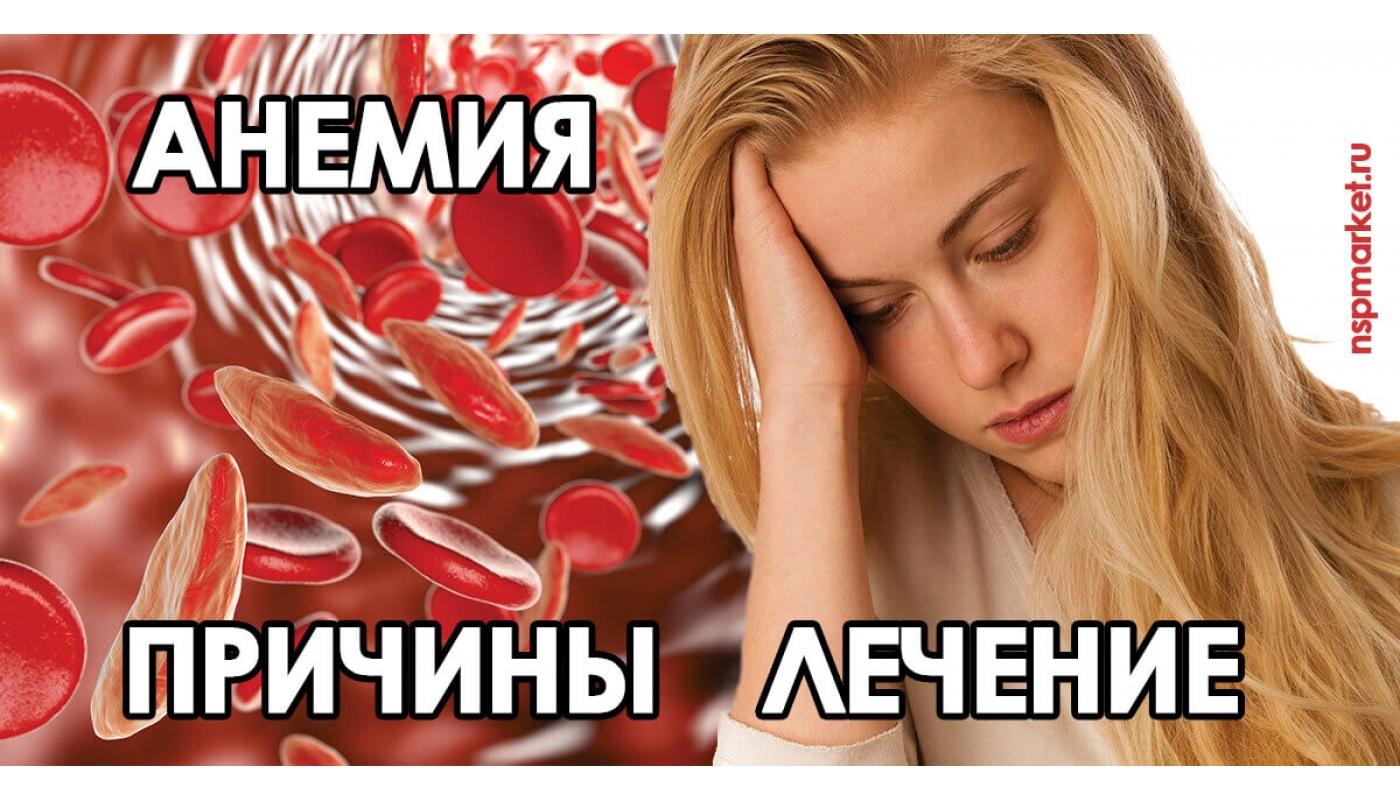 Причины анемии, дефицитная анемия. Анемия крови - лечение у детей и взрослых